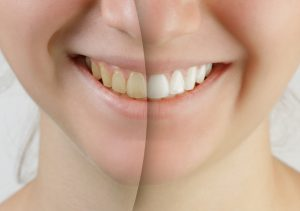 Zoom! Whitening can bring a beautiful shade of white back to your smile.