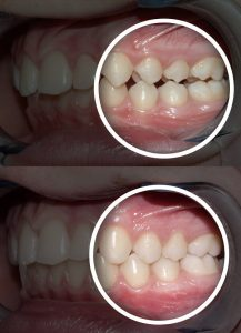 Cosmetic Dentistry, Teeth whitening, veneers, lumineers and Invisalign aligners are cosmetic dentistry procedures that can increase happiness, health, self-esteem and confidence.